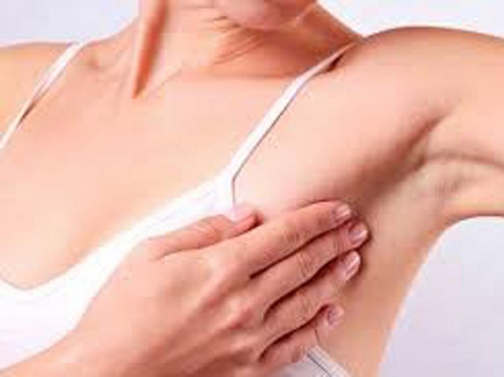 El Instituto Vall d'Hebron detecta una proteína para evitar la metástasis del cáncer de mama