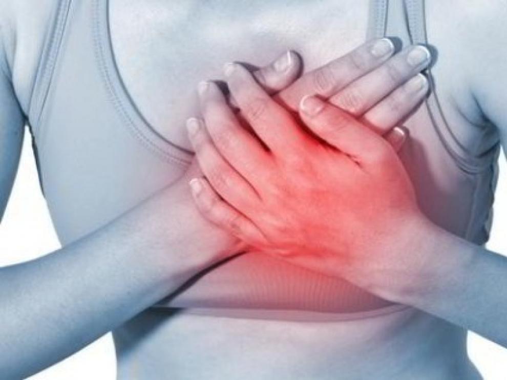 Hombres y mujeres pueden presentar síntomas distintos en caso de infarto
