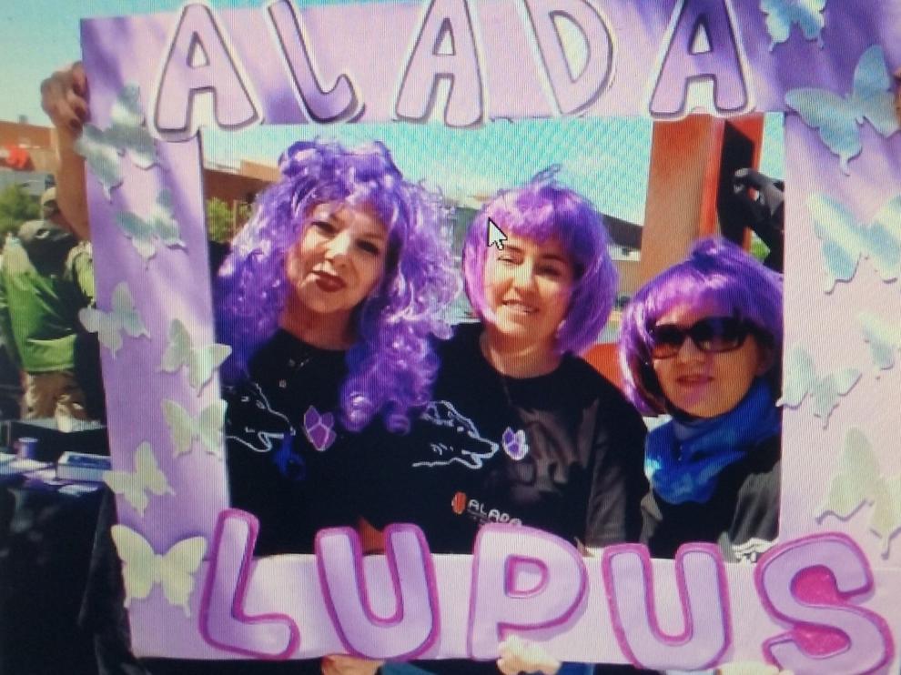 """Pacientes de lupus sufren """"cierta exclusión familiar, social y laboral"""""""