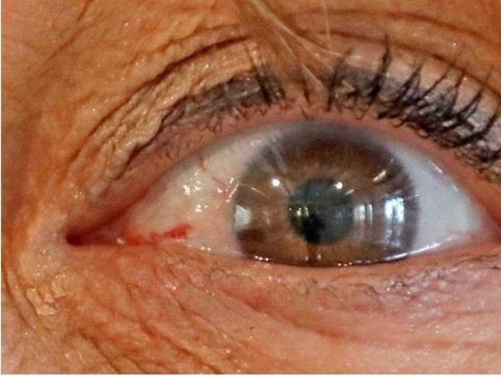 Avance en el diagnóstico precoz del alzhéimer a través de la retina