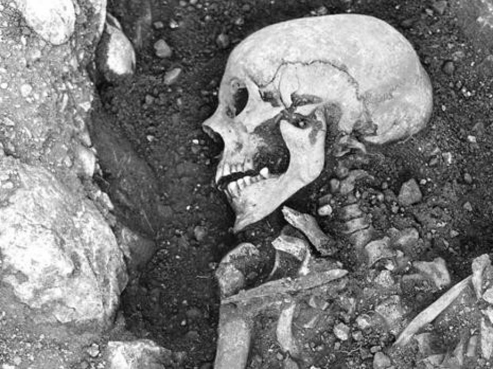 Los vikingos padecían viruela y pudieron haber ayudado a propagar el virus más mortal del mundo